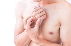 Braccio di scratch della mano dell'uomo su fondo bianco per sano Fotografia Stock Libera da Diritti