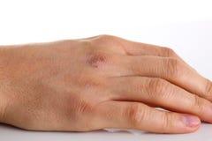 Braccio maschio nocivo con pelle asciutta corrotta Fotografia Stock Libera da Diritti