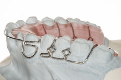 Brace. From a dental laboratory agains tooth displacement royalty free stock image