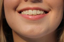 Brace. Closeup of smile woman with brace Royalty Free Stock Image