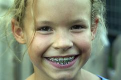 Brace face. Young girl who is very proud of her new mouth