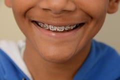 Brace smile Royalty Free Stock Image