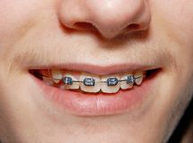 Braced smile Royalty Free Stock Photography