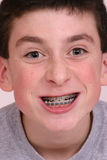 Braces. Teen boy with braces Royalty Free Stock Image