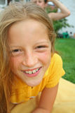 Braces. Portrait of pretty girl with braces Royalty Free Stock Photos