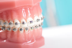 Braces Royalty Free Stock Photos