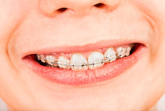 braces Royaltyfria Bilder