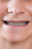 Braces. Mouth of a preteen boy showing his braces Stock Images