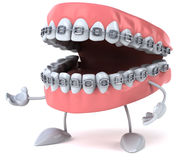 Braces Royalty Free Stock Photography