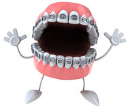 Braces Stock Photos