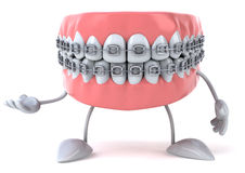 Braces Royalty Free Stock Photo