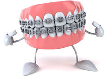 Braces. Fun 3d teeth, 3d generated picture Royalty Free Stock Photos