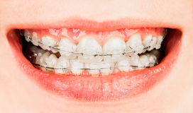 Braces Stock Image