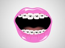 Braces. On woman teeth - vector Royalty Free Stock Photo
