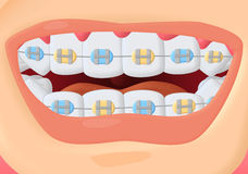 Free Braces Stock Images - 27860884