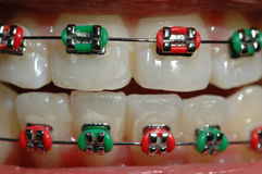 Braces in colour. Colorful braces of a teenager Stock Photography