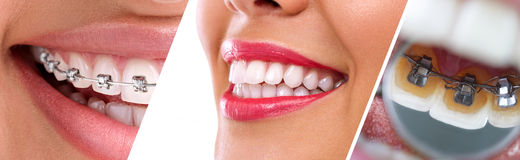 Braces. Collage of braces for correction of human teeth Stock Photography