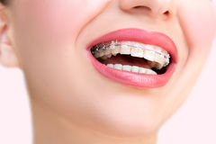 Braces. Dental Care Concept. Stock Photo