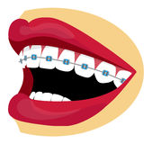 Braces illustration Royalty Free Stock Image