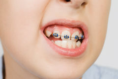 Braces. Jung boy wearing braces on his front teeth Royalty Free Stock Image