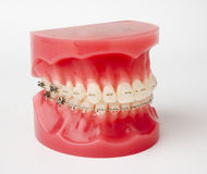 Braces model Royalty Free Stock Images
