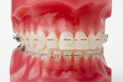 Braces model Royalty Free Stock Photo