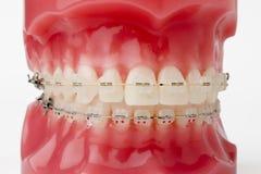 braces model στοκ φωτογραφία με δικαίωμα ελεύθερης χρήσης