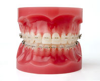 Braces model Royalty Free Stock Image