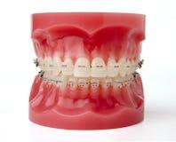 braces model Στοκ εικόνα με δικαίωμα ελεύθερης χρήσης