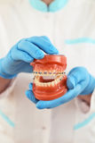 Braces model. Presentation of braces model by the doctor Stock Image