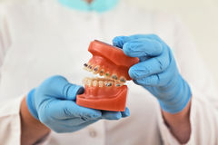 Braces model. Presentation of braces model by the doctor Royalty Free Stock Image