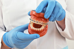 Braces model. Presentation of braces model by the doctor Royalty Free Stock Images