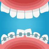 Braces in the mouth. Vector. Royalty Free Stock Photos