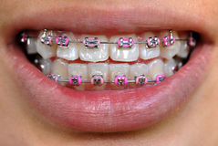 braces pink Στοκ φωτογραφία με δικαίωμα ελεύθερης χρήσης