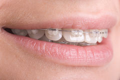 Braces on teeth. Close-up of teeth with braces royalty free stock photos