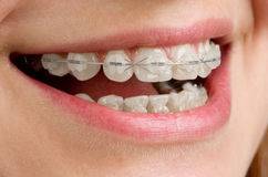 Braces on teeth. Close-up of teeth with braces Stock Photo