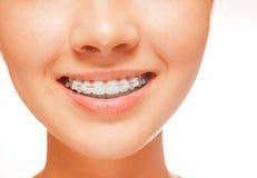 Braces on teeth, close-up Royalty Free Stock Photos