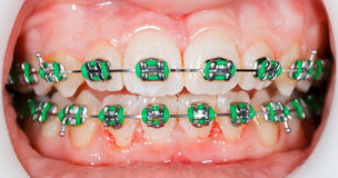 Braces on teeth Stock Image