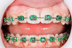Braces on teeth Royalty Free Stock Image