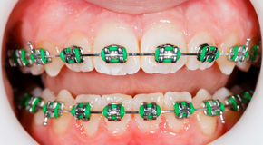 Braces on teeth Royalty Free Stock Photo