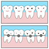 Braces teeth of icon painting line applications websites. Crowding teeth, dental concept. Comics about orthodontic treatment. illu Royalty Free Stock Images