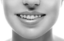 Braces teeth mouth orthodontics woman. Black and white. Royalty Free Stock Image