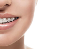 Braces teeth mouth orthodontics woman Stock Images