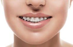 Braces teeth mouth orthodontics woman Royalty Free Stock Image