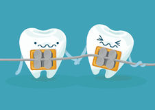 Braces teeth Royalty Free Stock Image