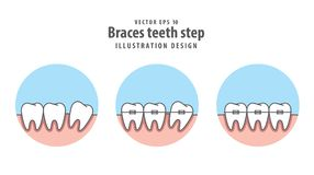 Braces teeth step in circle illustration vector on white   Stock Image