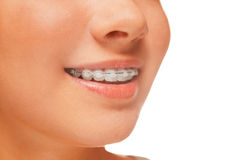 Braces on teeth. Woman smile: teeth with braces, dental care concept, side view Stock Images