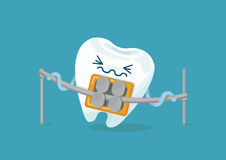 Braces tooth Royalty Free Stock Photo