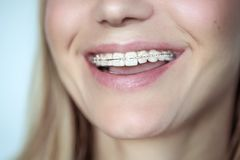 Braces, treatment for a crooked teeth stock photo