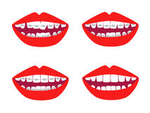 Braces vector set Royalty Free Stock Photos